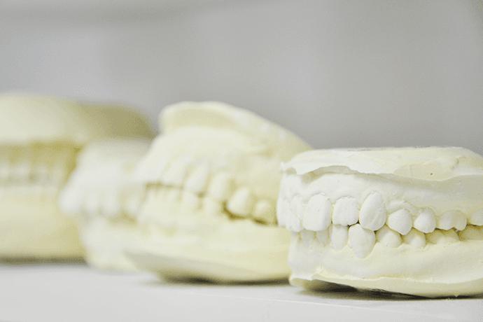 入れ歯制作のポイント